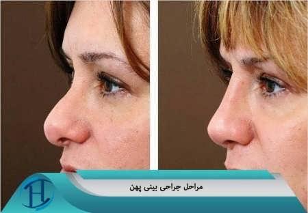 مرال جراحی بینی پهن