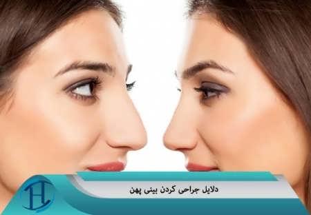 دلایل جراحی بینی پهن