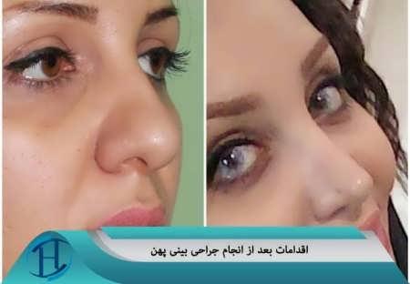 اقدامات بعد از جراحی بینی پهن