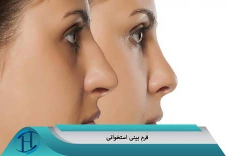 نمونه کار بینی استخوانی
