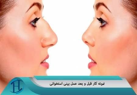 نمونه کار قبل و بعد عمل بینی استخوانی