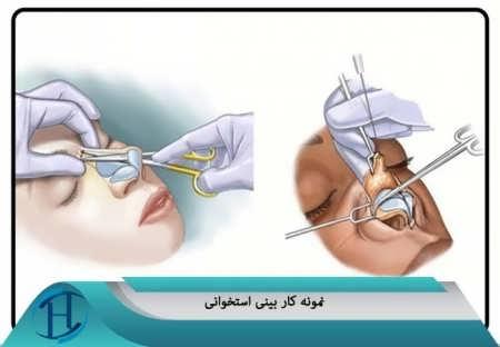 نحوه جراحی بینی استخوانی