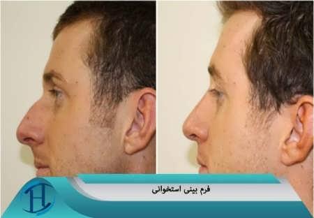 فرم بینی استخوانی
