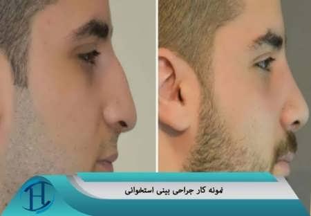 مدل بینی استخوانی مردانه