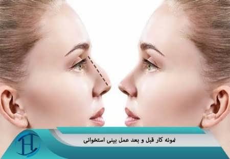 نمونه کار بعد و قبل بینی استخوانی
