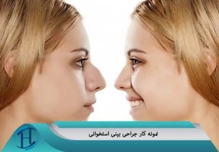 نمونه کار جراحی بینی استخوانی