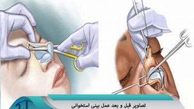 تصاویر قبل و بعد عمل بینی استخوانی