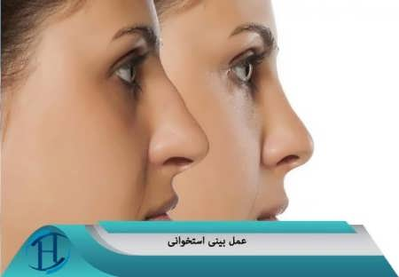 تصاویر قبل و بعد از عمل بینی
