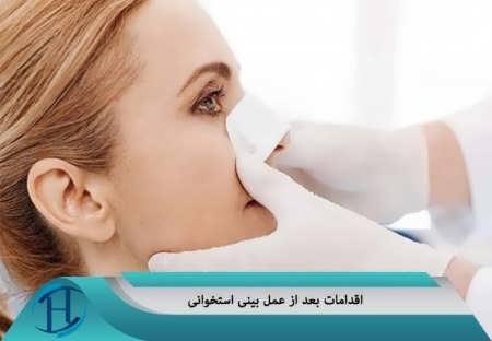 اقدامات بعد از عمل بینی استخوانی