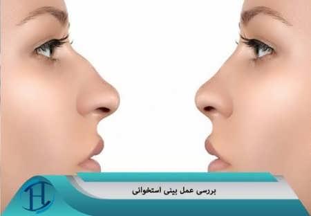 عمل بینی استخوانی
