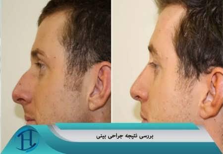 تصاویر قبل و بعد از عمل بینی استخوانی