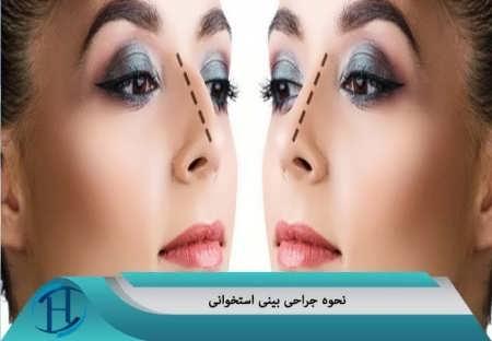 نتیجه عمل زیبایی بینی استخوانی