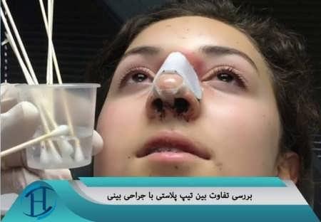 بررسی تفاوت بین تیپ پلاستی و جراحی زیبایی بینی