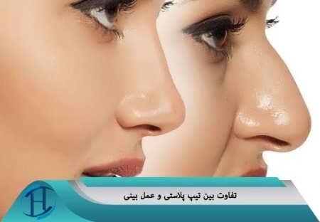 تفاوت بین تیپ پلاستی با جراحی بینی