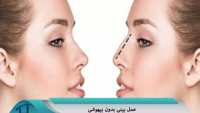 عمل بینی بدون بیهوشی