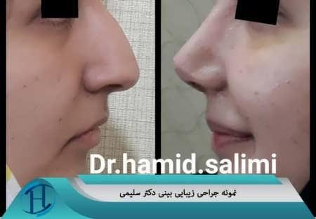 نمونه کار جراحی بینی گوشتی و استخوانی دکتر سلیمی