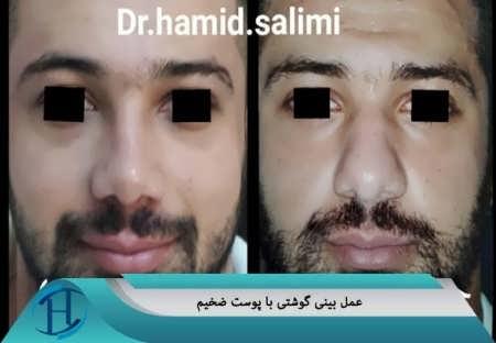جراحی بینی گوشتی در مشهد