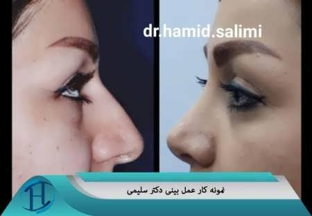 نمونه کار عمل بینی دکتر سلیمی