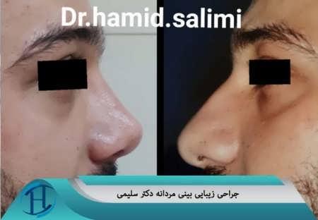 جراحی زیبایی بینی دکتر سلیمی در مشهد