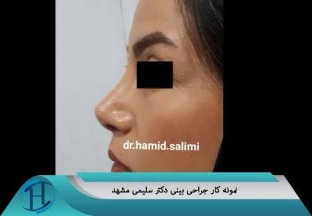 مدل نمونه کار جراحی بینی دکتر سلیمی مشهد
