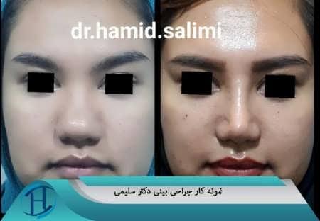 جراحی زیبایی بینی دکتر سلیمی