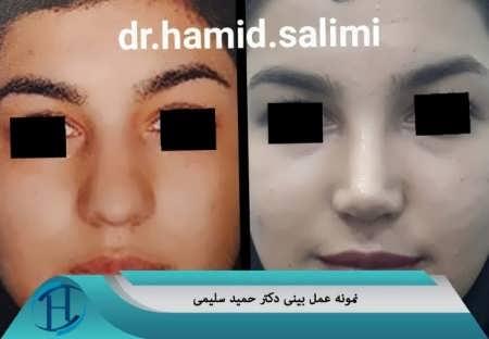 جراحی بینی دکتر حمید سلیمی