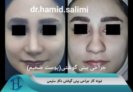 عمل بینی گوشتی دکتر سلیمی