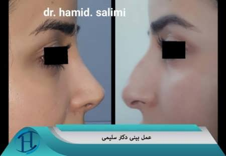 عمل بینی دکتر سلیمی