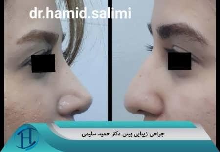 جراحی زیبایی دکتر حمید سلیمی