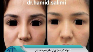 نمونه کار جراحی بینی دکتر سلیمی مشهد