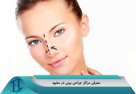 مرکز جراحی بینی در مشهد