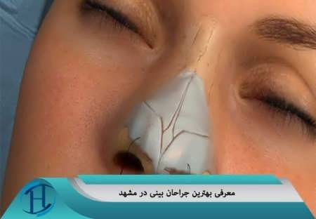 مراکز جراحی بینی